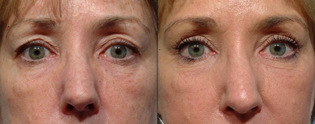 What Are The Signs That You Need Revision Eyelid Surgery?