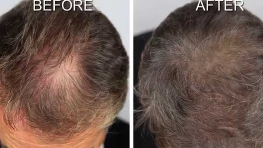 Possible Re-growth Solutions for Hair Loss