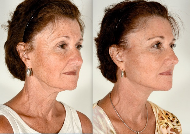 What You Should Know About Facelift