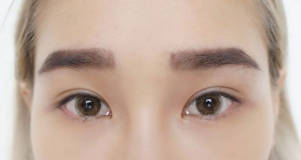 An All-In-One Post Eyelid Surgery Recovery Guide