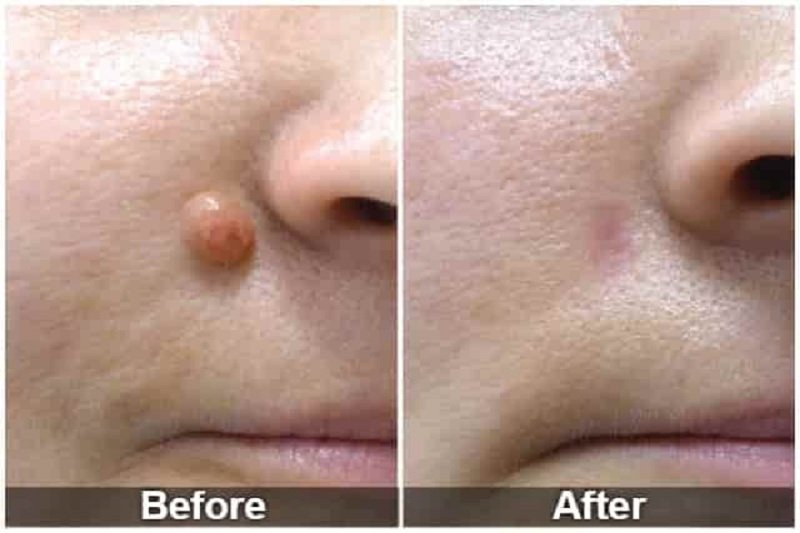 What are My Mole Removal Options?