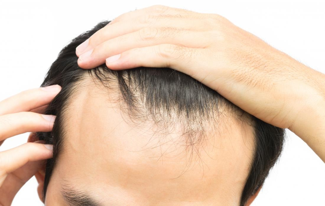 Fighting hair loss the way that's right for you