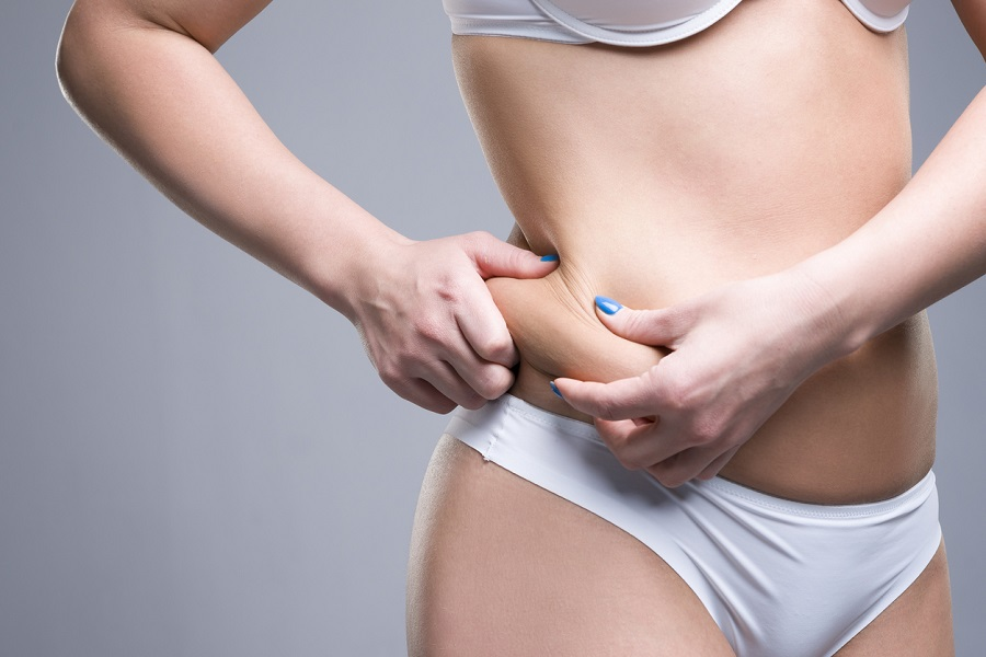 CoolSculpting vs. Liposuction: How Do I Know Which Treatment to Choose?