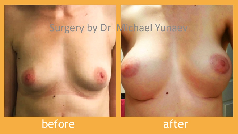 Simple Procedures Can Fix Your Tuberous Issue