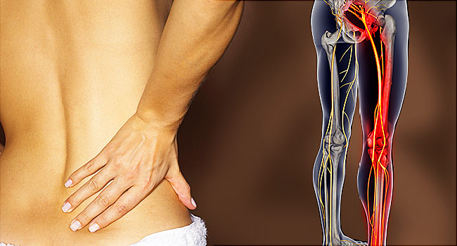 Sciatica – Its triggers, signs, treatment and management