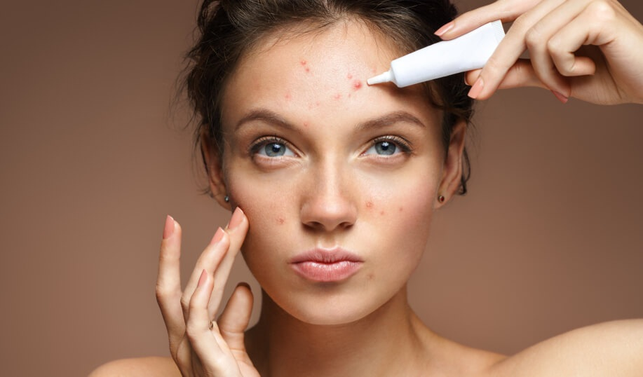 Simple ways to get rid of pimple marks