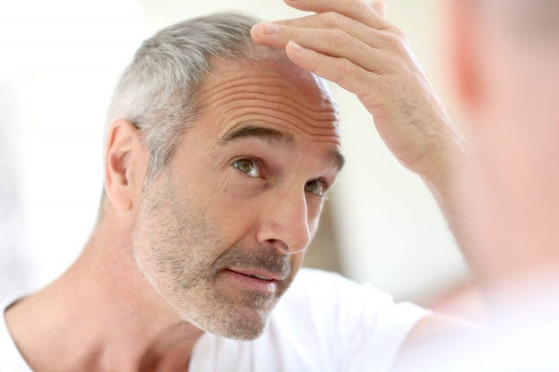 How To Stop Hair Fall and Balding
