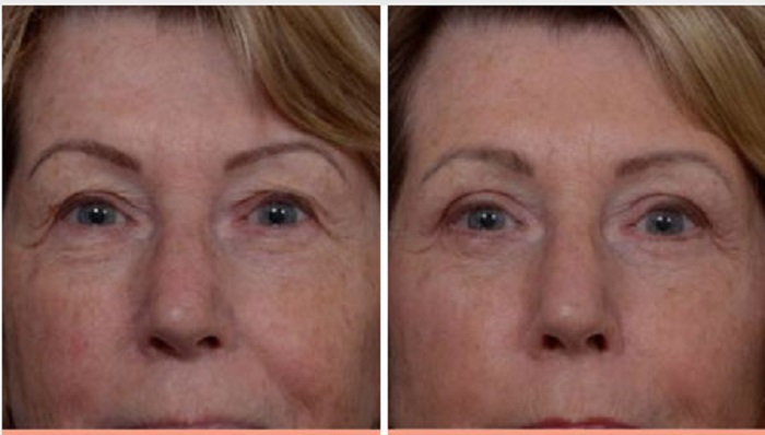 Make Yourself Look Younger With These Simple Procedures