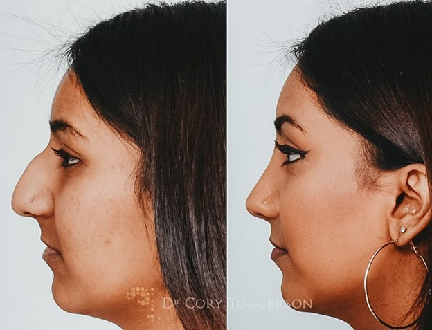 WHY YOU SHOULD GET A FACELIFT