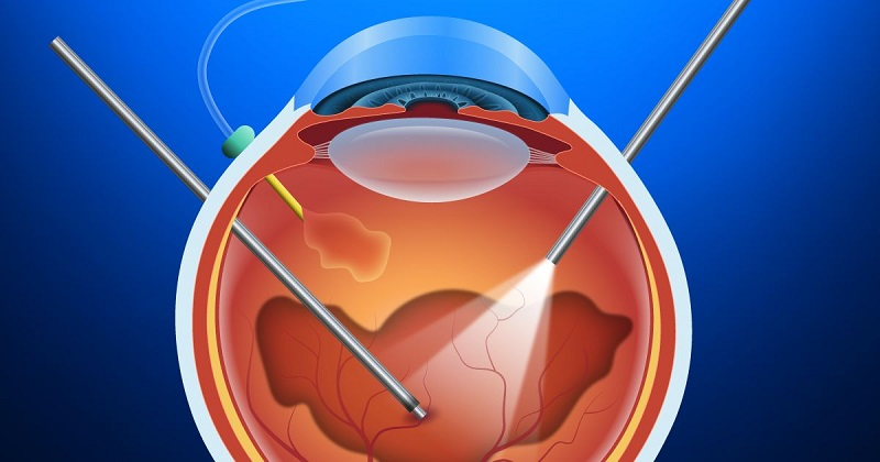 A comprehensive guide on Vitrectomy malpractices- All that you must know