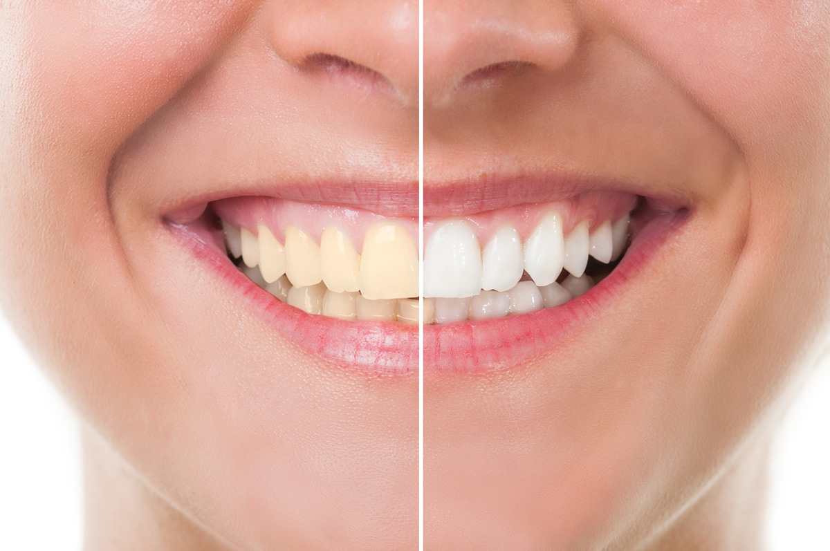 Four Common Procedures Used in Cosmetic Dentistry