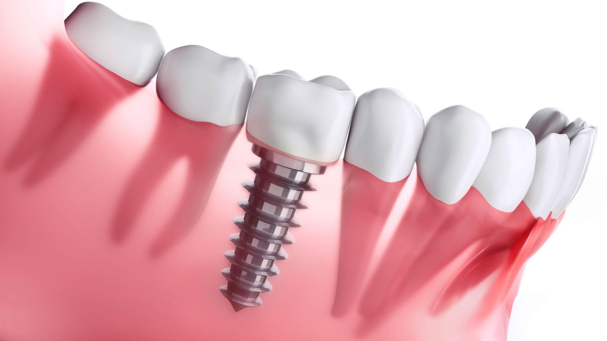 Should You Invest in Fresno Dental Implants?